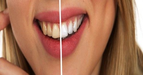 Dentist-Deerfield.jpg