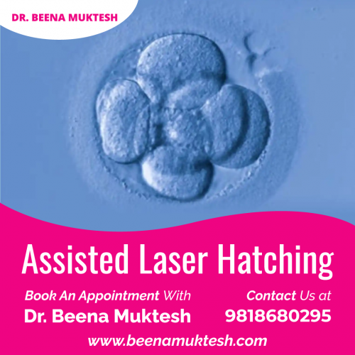 Assisted-Laser-Hatching.png