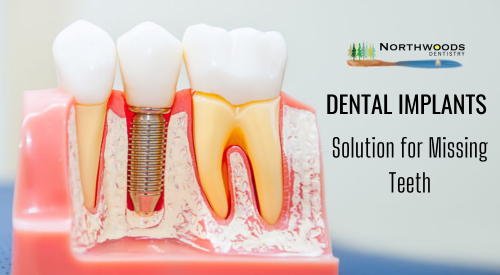 Best-Dental-Implant-Clinic-for-Your-Treatment.png