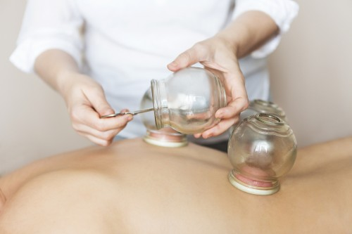 Cupping therapy is an ancient form of alternative medicine, it involves placing medical grade cups on the skin to create suction. The cups are applied to the meridians (energy pathways) and either left in place or moved along the skin with the help of oil (gliding cupping).  Visit us: https://painbegone.com.au/cupping_therapy/