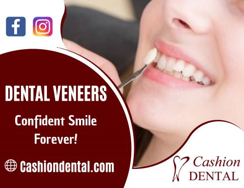 Dental-Veneers.png