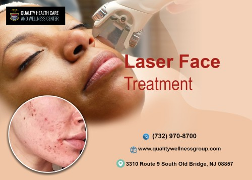 Offering-Various-Types-Of-Laser-Face-Treament-In-New-Jersey.jpg